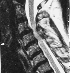 afxeniki-myelopatheia-prin