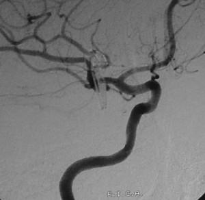 aneurisma-mesis-egkefalikis-meta