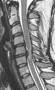 myelopatheia-prin