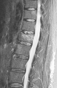 spondyloplastiki-prin